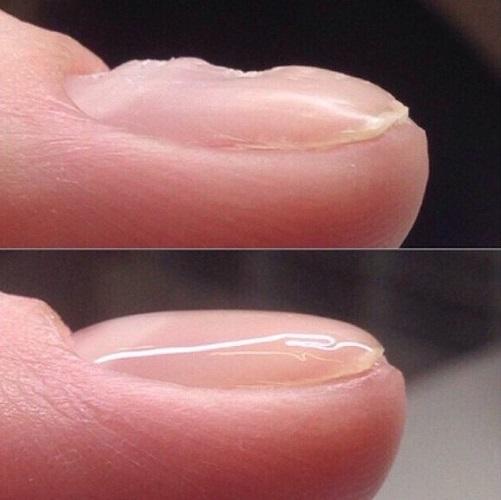 Как выровнять ногтевую пластину базой гель