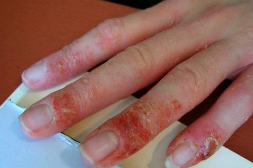 Симптомы и причины аллергии на гель-лак