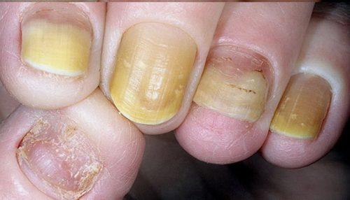 Что такое псориаз ногтей и как его лечить