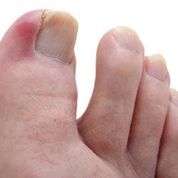 Как лечить вросший ноготь на большом пальце ноги