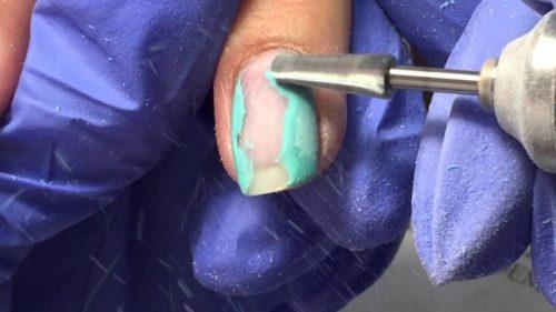 Почему болят ногти после снятия гель-лака
