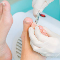 Как удаляют вросший ноготь, когда нужна операция
