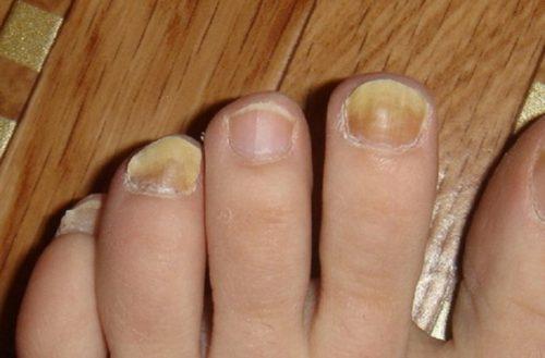 Почему желтеют ногти на ногах и как их лечить